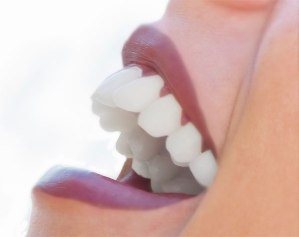 Teeth whitening cosmetic dentistry cosmetic surgery today do it yourself methods solutioingenieria Gallery