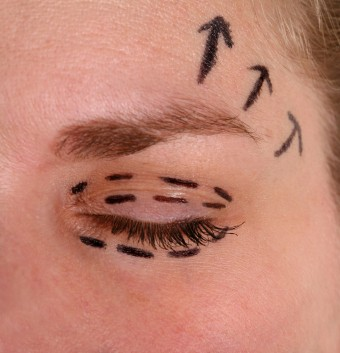 laser-eyelid-surgery
