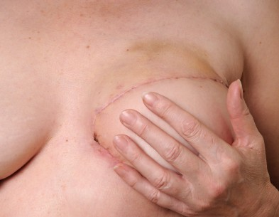 breast-reconstruction-surgery