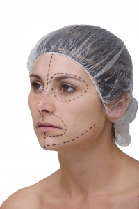 cosmetic surgery facelift