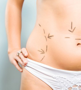 Marks on abdomen for plastic surgery