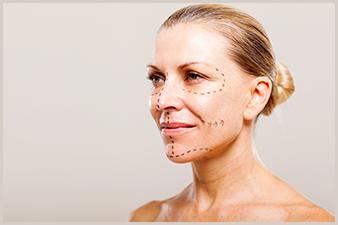 Labiaplasty surgery large labia reduction