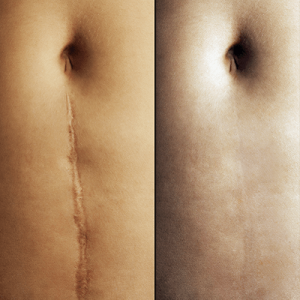 Affects Of Breast Augmentation Surgery 95